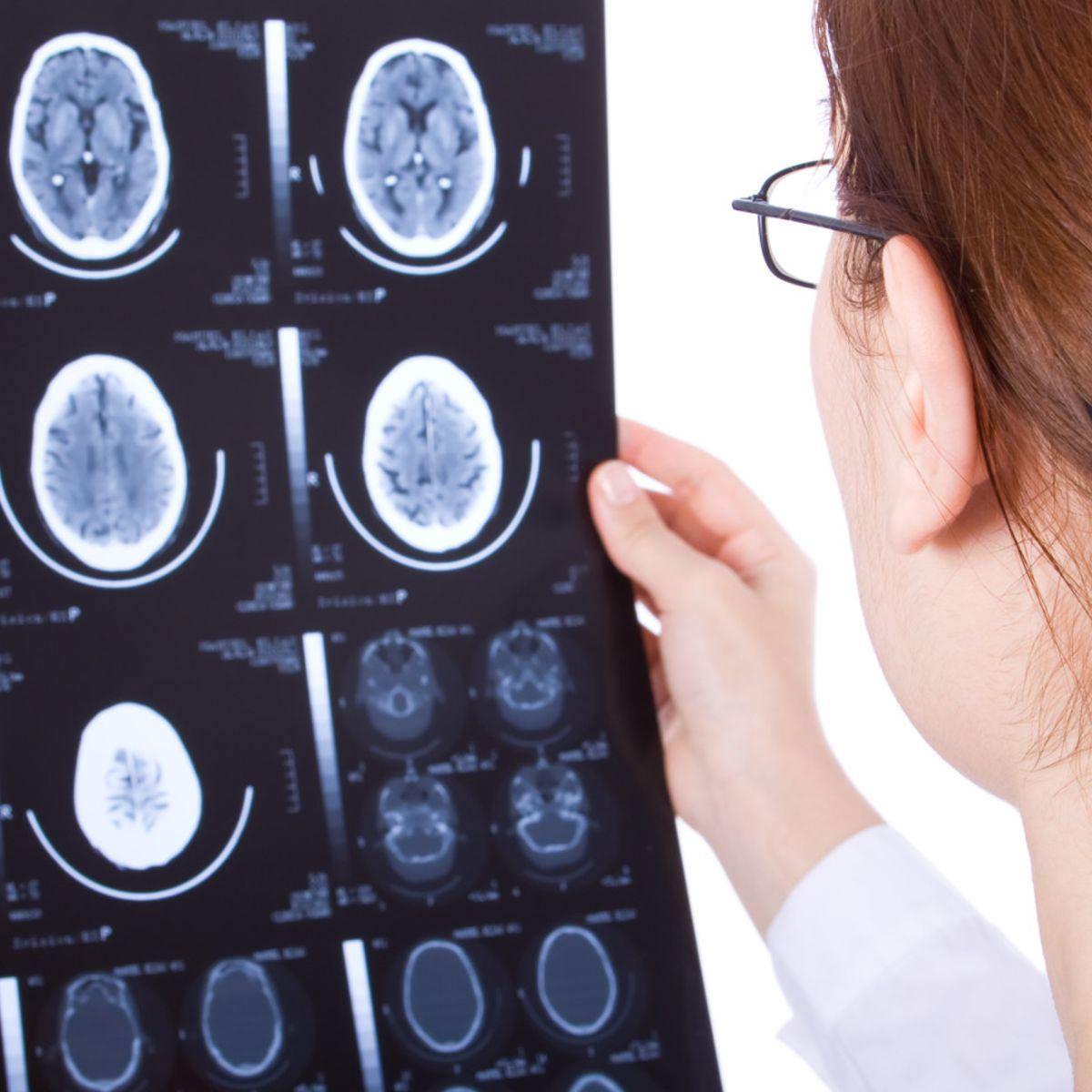 epilepsie traitement