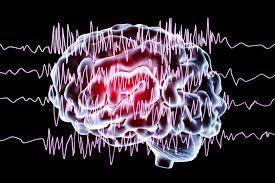 cerveau épileptique